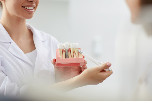 dopo impianto dentale cosa fare