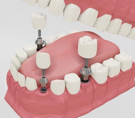 impianto dentale quanto dura